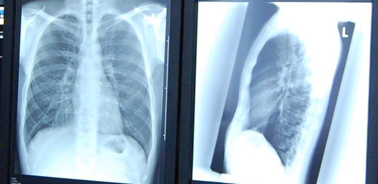 Röntgenbild Röntgenpraxis Berlin